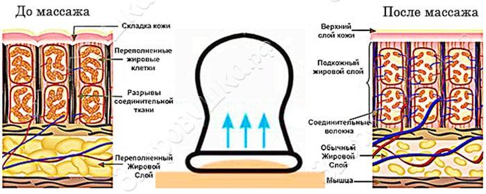 massajnaya-banka-chudo-banka-komplekt-2-sht-zdorovushka-08.jpg